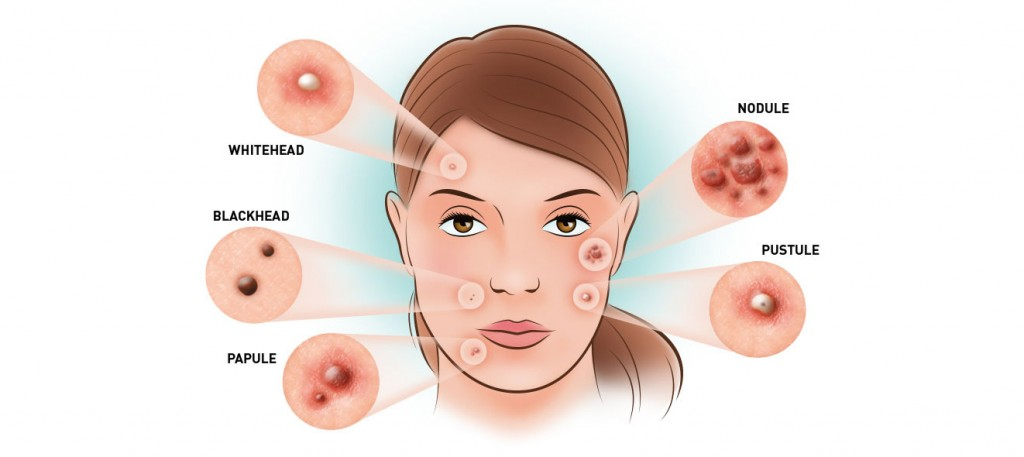 acne-types-for-how-to-get-rid-of-acne-fast